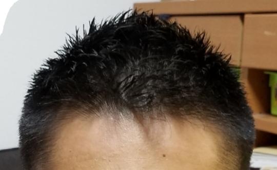 薄毛 坊主 髪型